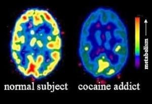 neuroimaging cocaina
